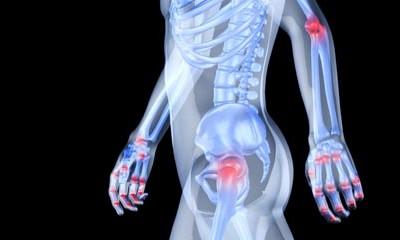 Arthritis Gap-fill task